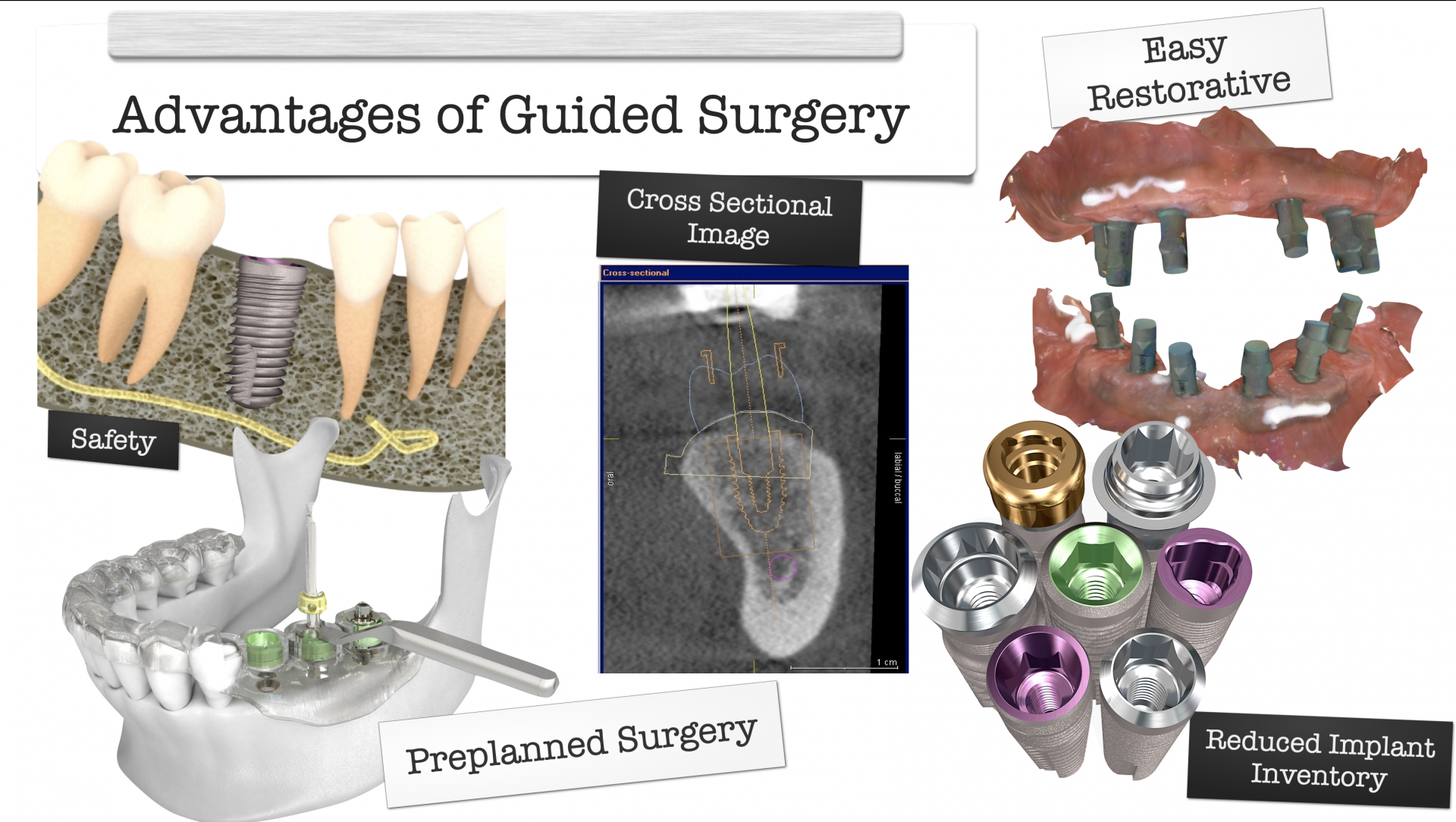 Make your own Surgical Guides<span>I'll show you how to design and print surgical guides for about $25 each using Blue Sky Plan.</span>